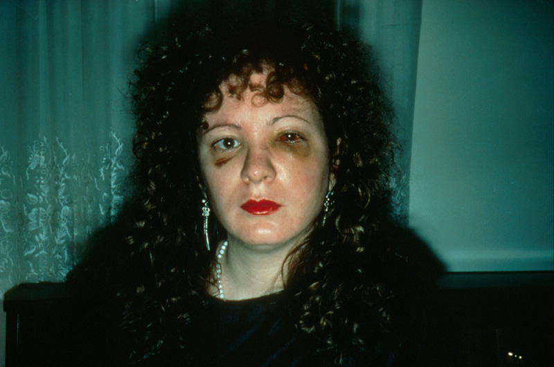 Nan Goldin, 'Nan One Month After Being Battered', 1984. From the series The Ballad of Sexual Dependency